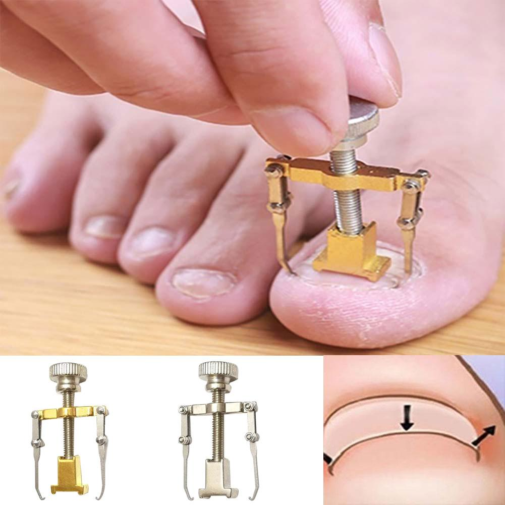 Ingrown Toenail Toe Fixer Recover Correction Device Pedicure Foot Nail Care Tool Easy to Use Инс�