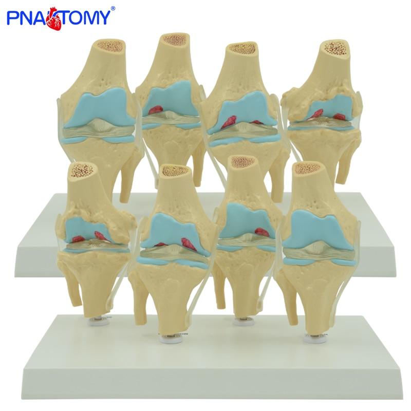 Four sets human knee model normal and abnormal knee joints model medical teaching tool skeleton anatomy human shoulder model life size medical teaching tool skeleton anatomy