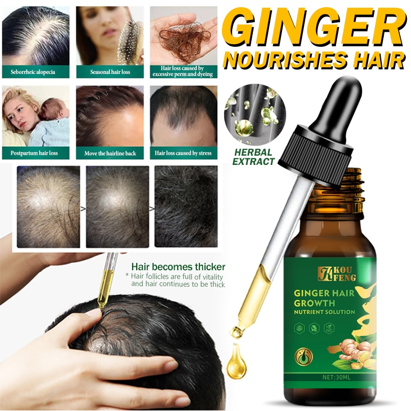 1pc Ginger Hair Growth Oil Germinal Serum Loss Treatment Care 30ml Dropshipping KeFeng