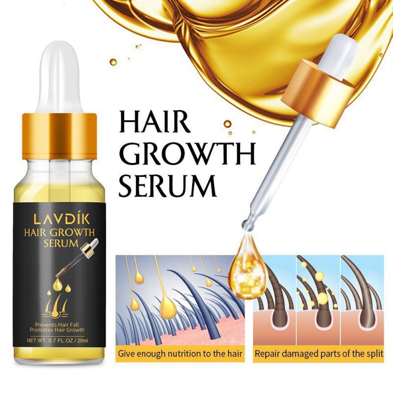 1pcs  Fast Hair Growth Serum Essential Oil Ginger Anti Preventing Hair Lose Liquid Damaged Hair Repa