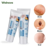 1pcs 20g warts removal cream antibacterial wart treatment ointment skin tag remover herbal extract corn ointment body skin care