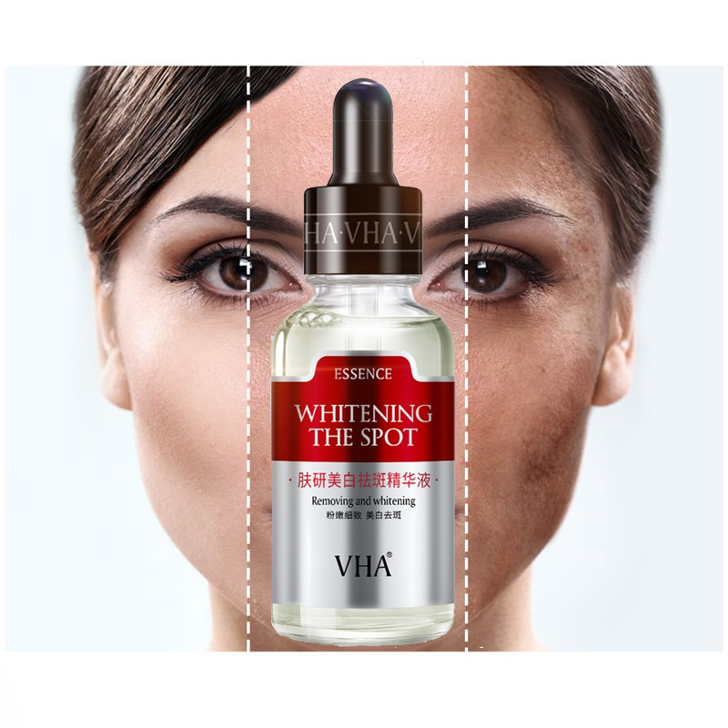 whitening and Anti-Freckle Facial Serum Anti-Aging Nicotinamide Whitening Cream Serum Facial Skin Ca