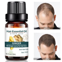 Powerful Hair Growth Essence Hair Loss Products Ginger Original 100% Hair Loss Liquid Health Care Ha