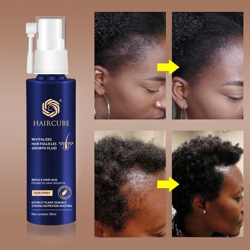 Fast Hair Growth Essence Natural Herbal Health Treatment Hair Loss Makes Hair Growth Longer and Thic