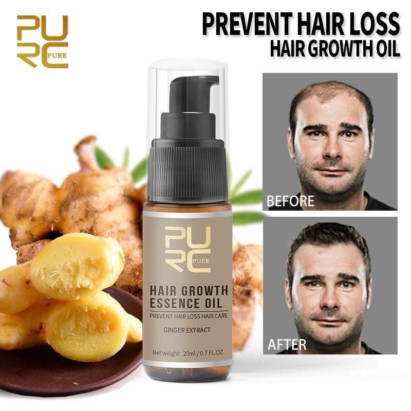Aceite esencial para el crecimiento del cabello, aceite de esencia de Jengibre...