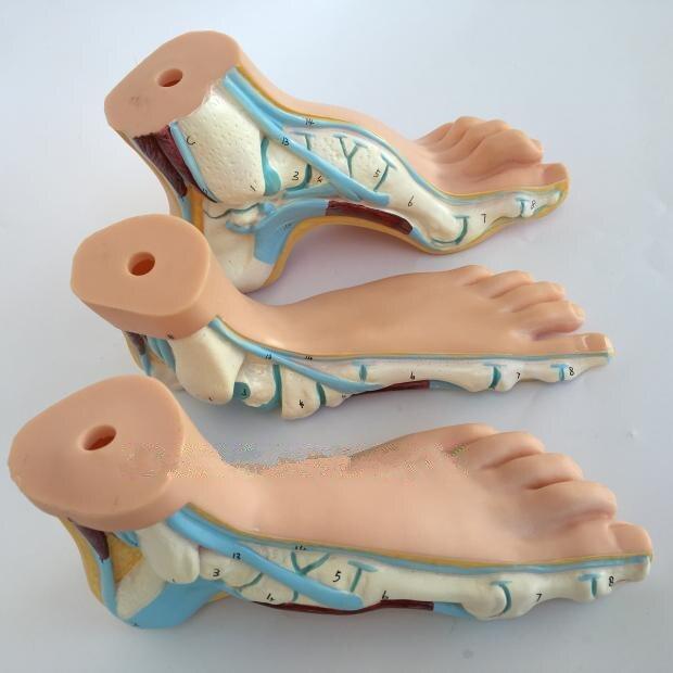 Modelo de pie humano, músculos del pie, pie plano, Talipes, modelo de pie con lazo de cavis, modelo de anatómico, modelo de enseñanza de ciencia médica