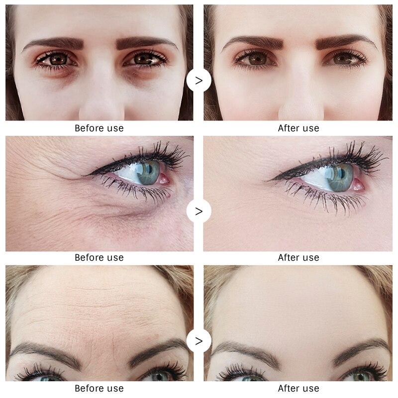Купить с кэшбэком OMY LADY 5PCS EyeCream Instant Remove Eyebags Firming Eye Anti Puffiness Dark Circles Under Eye Anti Wrinkle Anti Age Eye Care