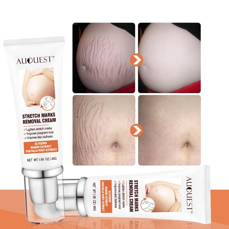 AUQUEST Stretch Marks Remove Maternity Cream For Pregnant Women Treatment Skin Care Pregnancy Scars Buttock Breast Body Cream