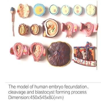 set Human fertilization 16 and early embryo development Demonstration model Gynecology teaching exhibition specimen