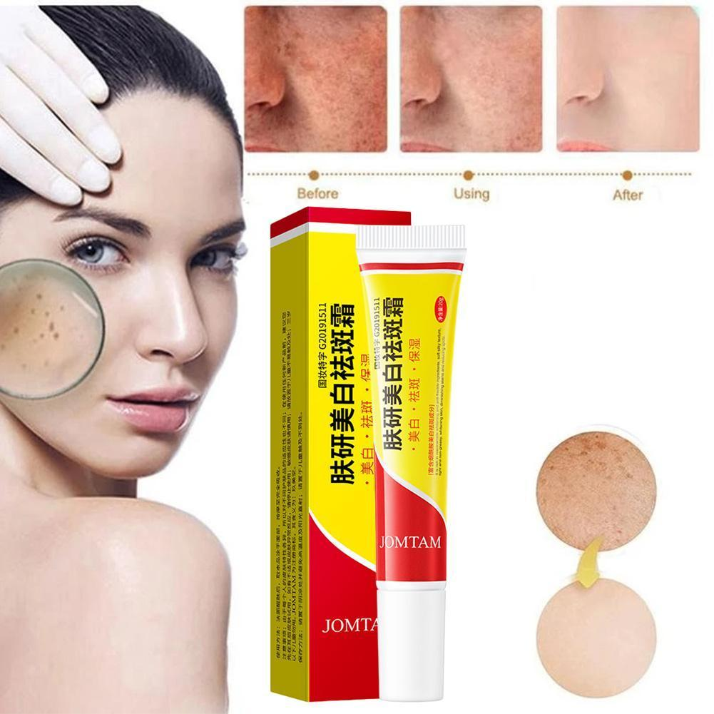 Effective Whitening Freckle Cream Remove Melasma Acne Gel Pigmentation Spots Pigment Care Dark Spot