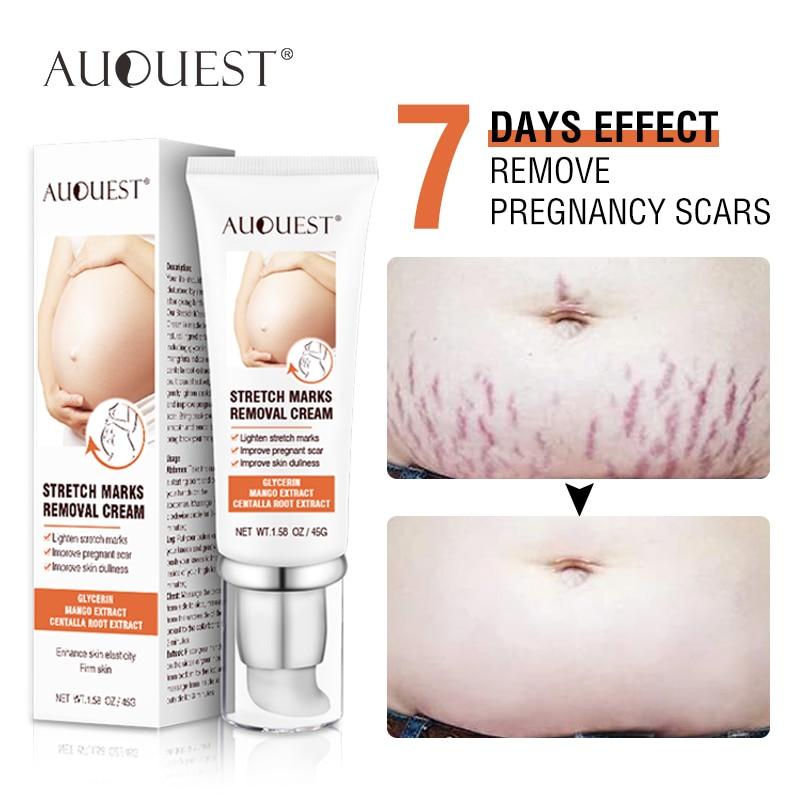 Remove Pregnancy Scars Acne Cream Stretch Mark Treatment Maternity 7 Days Effect ESSENTI OIL Repair Anti-Aging Body Cream 45g недорого