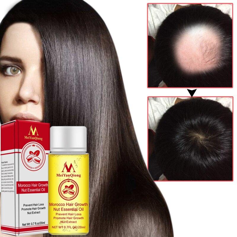 Producto multifuncional para el cuidado del cabello con forma de nuez, potente esencia para el crecimiento del cabello, aceite esencial, tratamiento líquido, TSLM1
