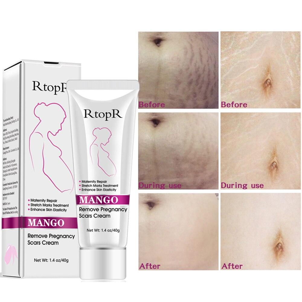 Mango Maternal Anti-Aging Repair Anti-Wrinkle Firming Body Cream Remove Pregnancy Acne Scar Stretch Mark Cream TSLM2 недорого