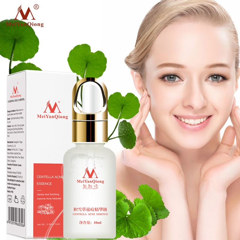 10ml natural mild no surgery powerful nose lift up essence oil beauty nasal care massage bone remodeling serum shaping cream Centella Asiatica Acne Serum Face Whitening Essence Moisturizing Anti Wrinkle Anti Aging Shrink Pores Oil-Control Skin Care 10ml