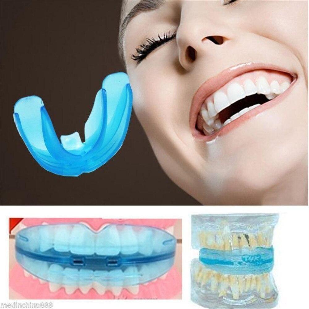 Adulto e Criança Dental Ortodontia Appliance Instrutor de dente Oral Boca Correção Fanfarrão Retentor Chaves Dentes higiene corrector