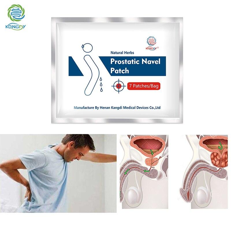 Parche de tratamiento prostático KONGDY de 14 Uds., parche para el ombligo Prostatitis 100%, parches naturales de hierbas, para el cuidado de la salud