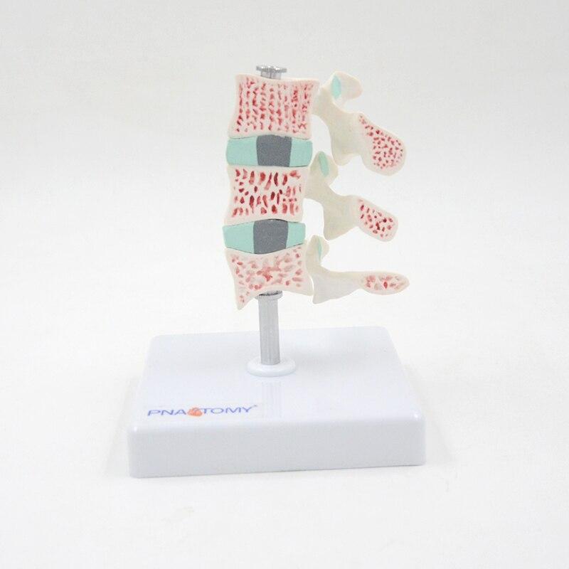 Модель остеопороза, разрежение костной потери поясницы, демонстрационное обучающее оборудование, обучающий инструмент