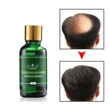 Hair Care Hair Growth Essential Oils Essence Original Authentic 100% Hair Loss Liquid Health Care Be