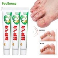 13pcs foot cream foot corn removal athletes erosive beriberi anti itching sweat odor feet psoriasis antibacterial ointment