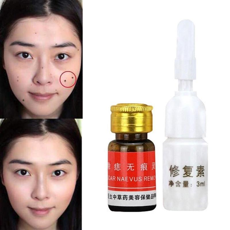 3ml Professional Painless Mole Removal Cream Cream Nail Removal Cream Nail Cream Treatment