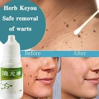 genital warts treatment papillomas removal warts fluid remedy against anti moles tags wart skin removal from 10ml remover k0d9