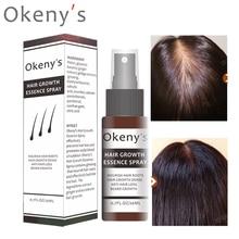 Okenys gingembre croissance des cheveux Essence Spray 20ml croissance restauration huile de pain sérum pour homme femme Anti perte de cheveux prévenir la calvitie
