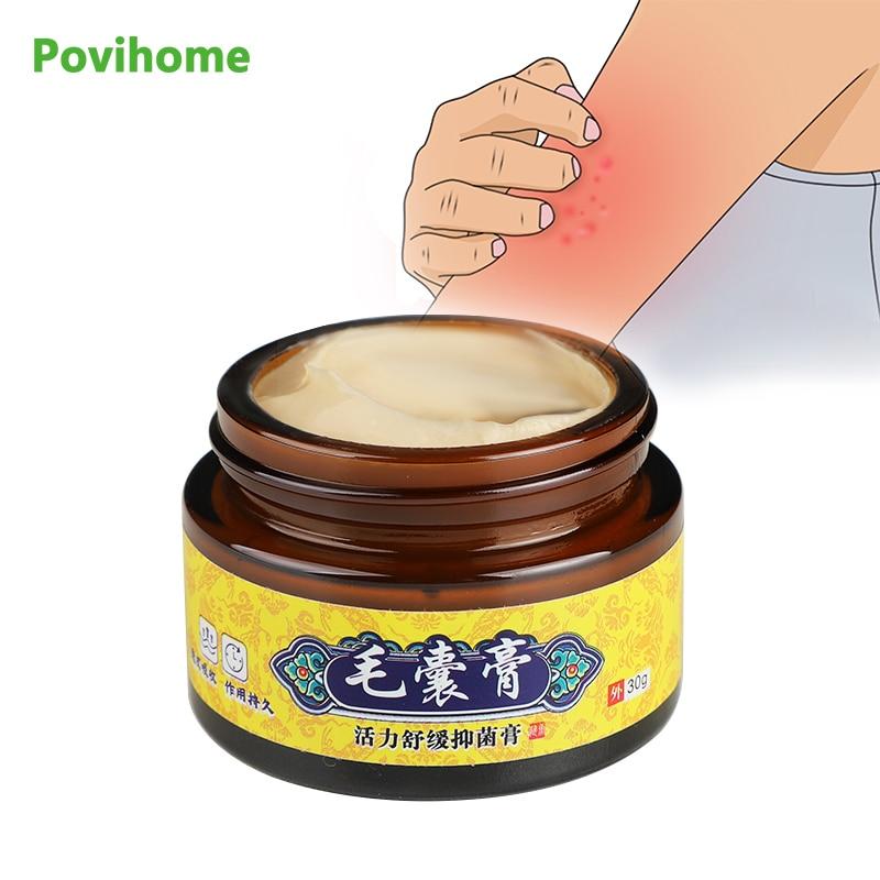 30g Folliculitis Antibacterial Cream Pruritus Eczema Plaster Anti Inflammation Fungi Relieve itching Ointment Skin Care