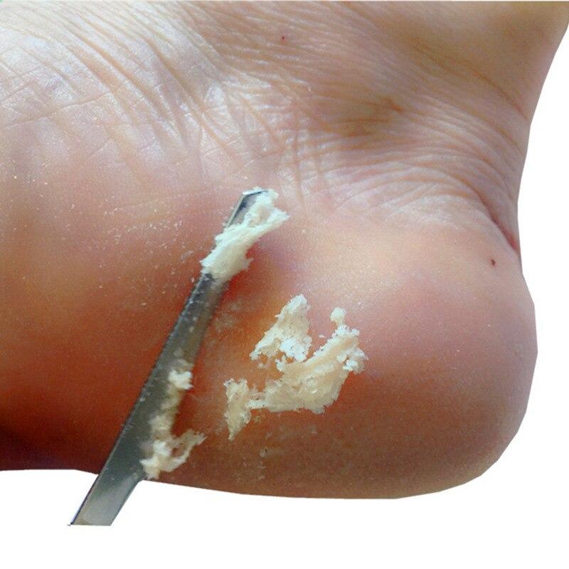 Инструменты для маникюра и педикюра, набор ножей для бритья ногтей и педикюра, для удаления огрубевшей кожи ног и мозолей недорого