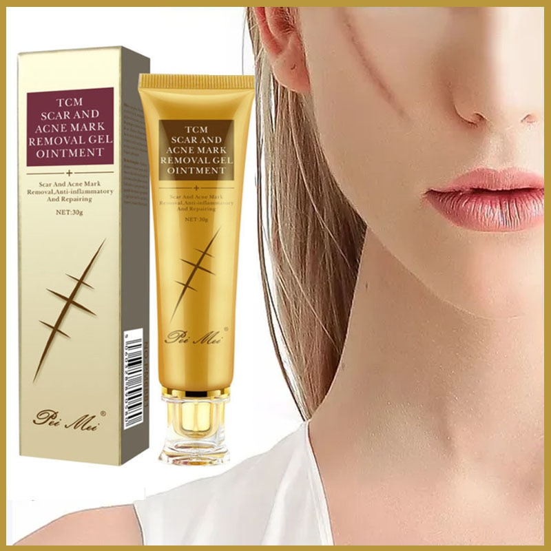 Acne Scar Removal Face Cream Pimples Stretch Marks Gel Remove Acne Smoothing Whitening Moisturizing Body Skin Care Aichun 30g недорого