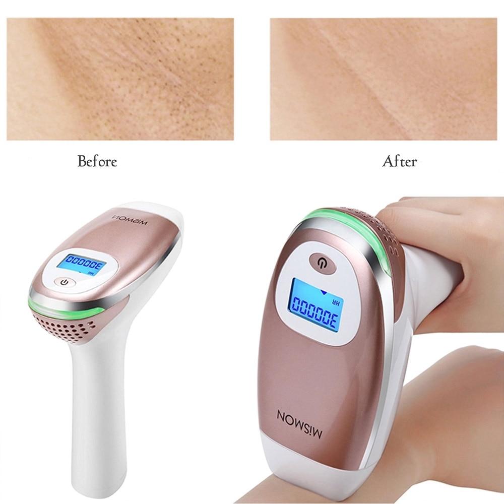 FDA IPL Laser Permanent Hair Removals Machine for Face Body Bikini Trimmer Men Women Electric Depilador Shaver With 300000 Flash enlarge