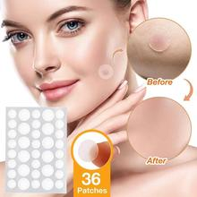 3ml Wart Removal With 36 Stickers Wart Removal Patches Moles Set Wart Care Against Combination Skin