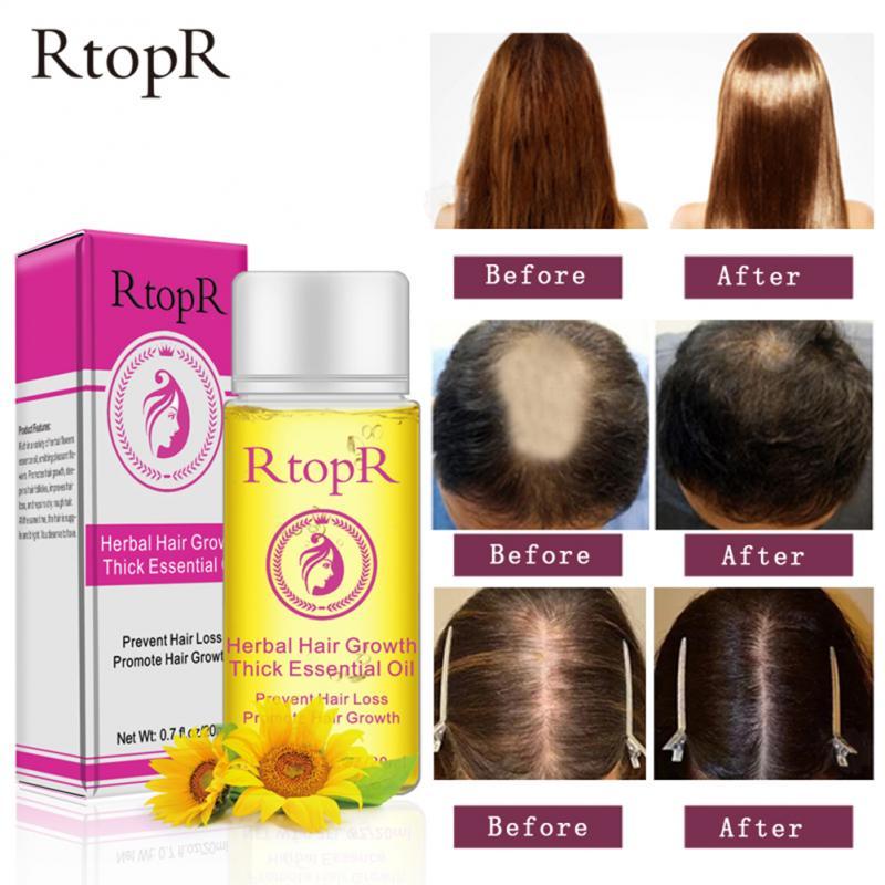 Aceites esenciales para el cabello Rtop, aceites esenciales puros y naturales a base de hierbas para el crecimiento del cabello, aceites esenciales gruesos, pelo seco y dañado, nutrición del cabello, cuidado del cabello