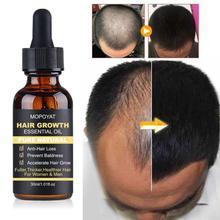 Hair Care Hair Growth Essential Oil Serum Hair Loss Liquid Beauty Dense Hair Growth Serum Hair Care