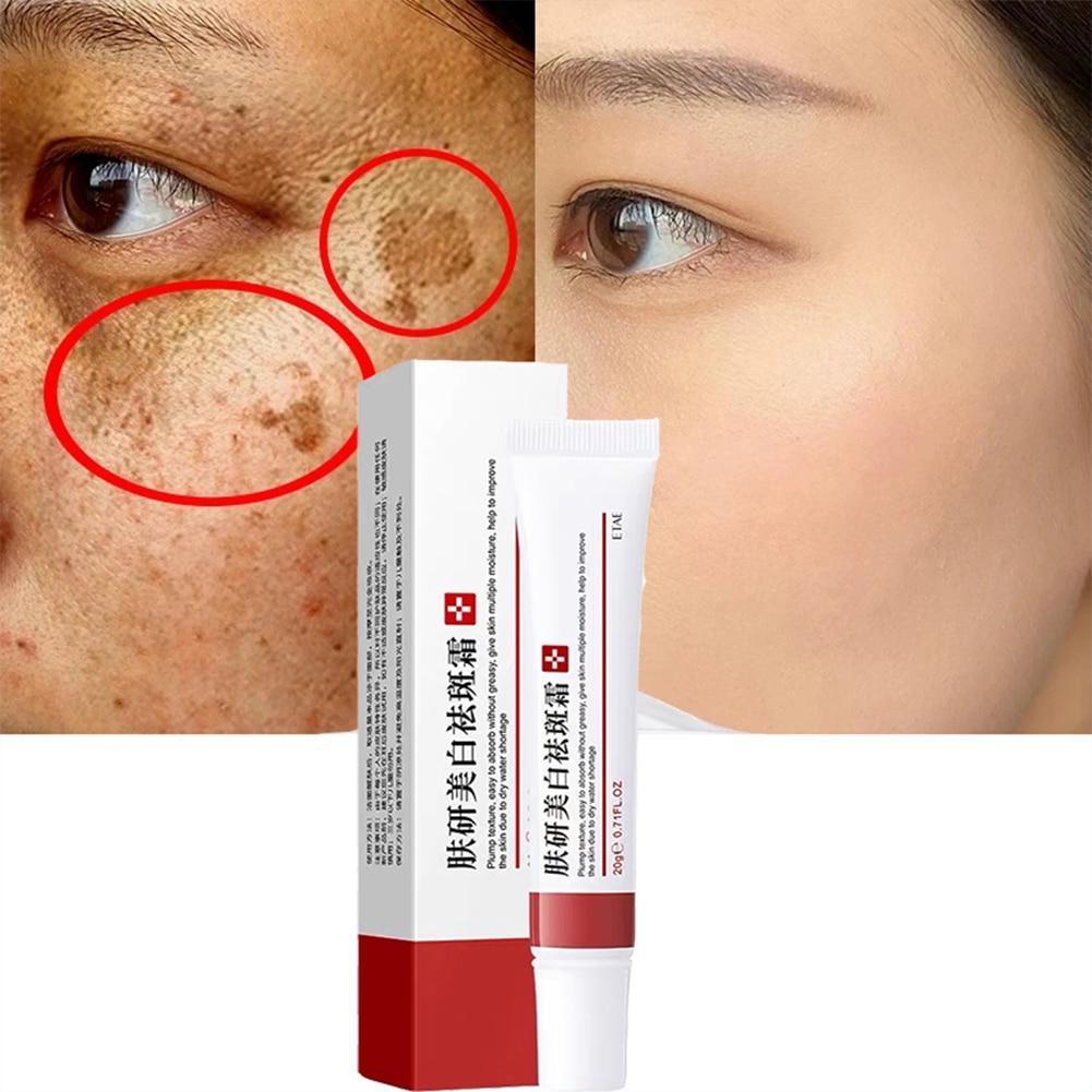 Freckle Removal Cream Acne Cream Acne Treatment Face Cream Shrink Pores Control Acne Cream Whitening Moisturizing Oil Skin Care недорого