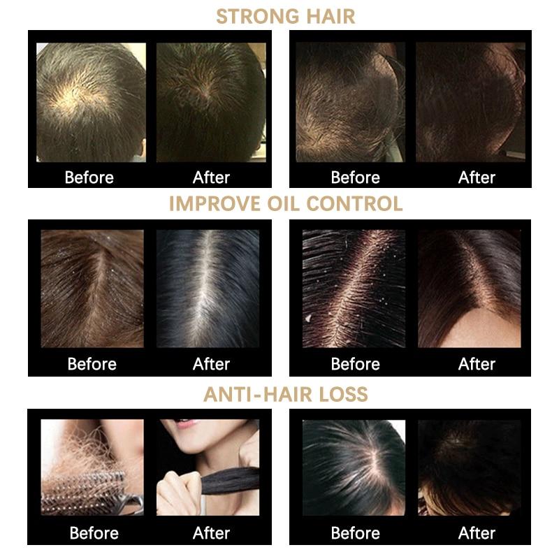 Купить с кэшбэком 30ML Hair Growth Spray Kera Vit Ginger Extract Essence Dense Hair Growth  Anti Hair Loss Nourish Roots