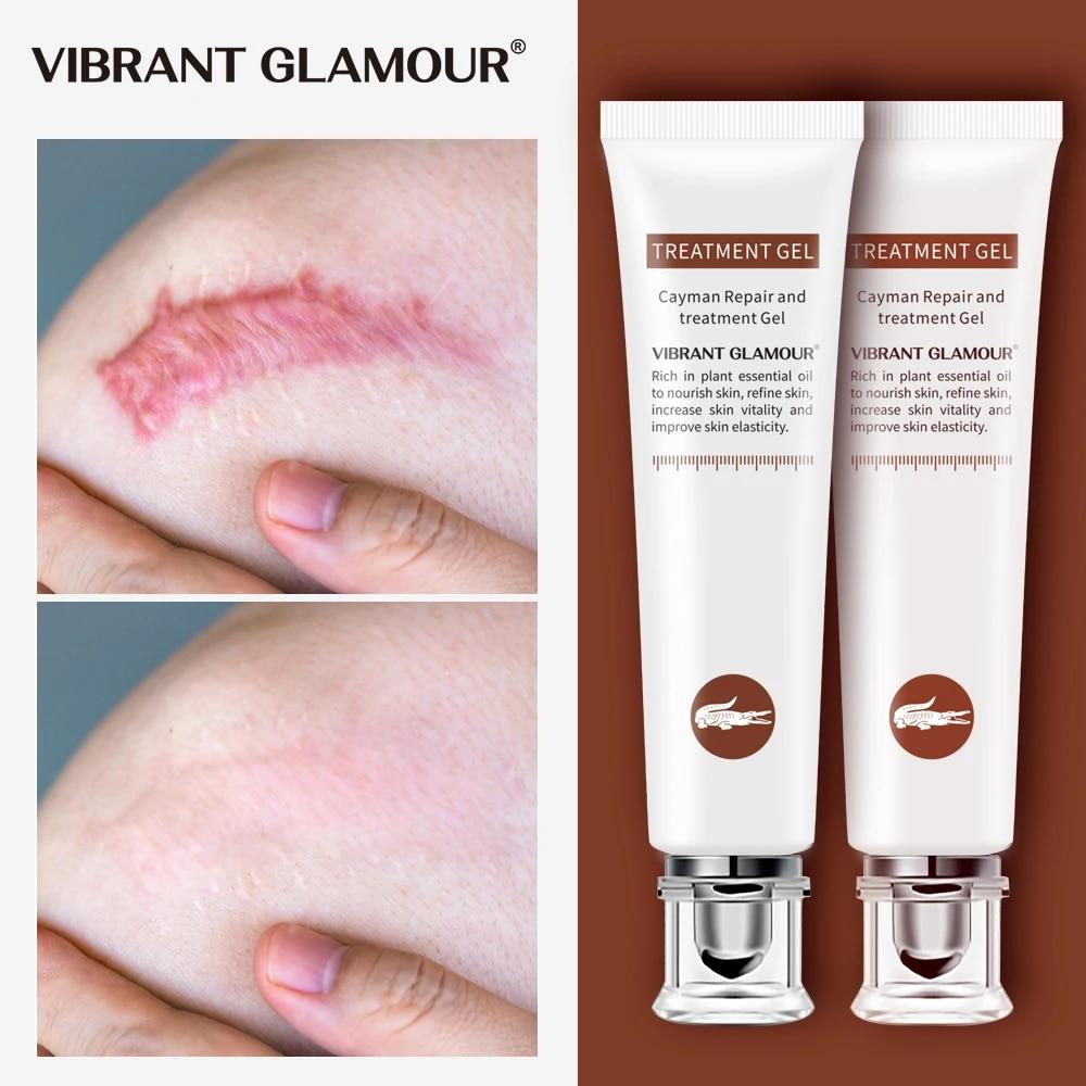 Vibrant Glamour Crema Reparadora De Cicatrices Gel Para Cicatrices Acné Corrector De Pigmentación Corporal Para Quemar Cicatrices Cuidado 2 Uds Crema Solar Facial Aliexpress