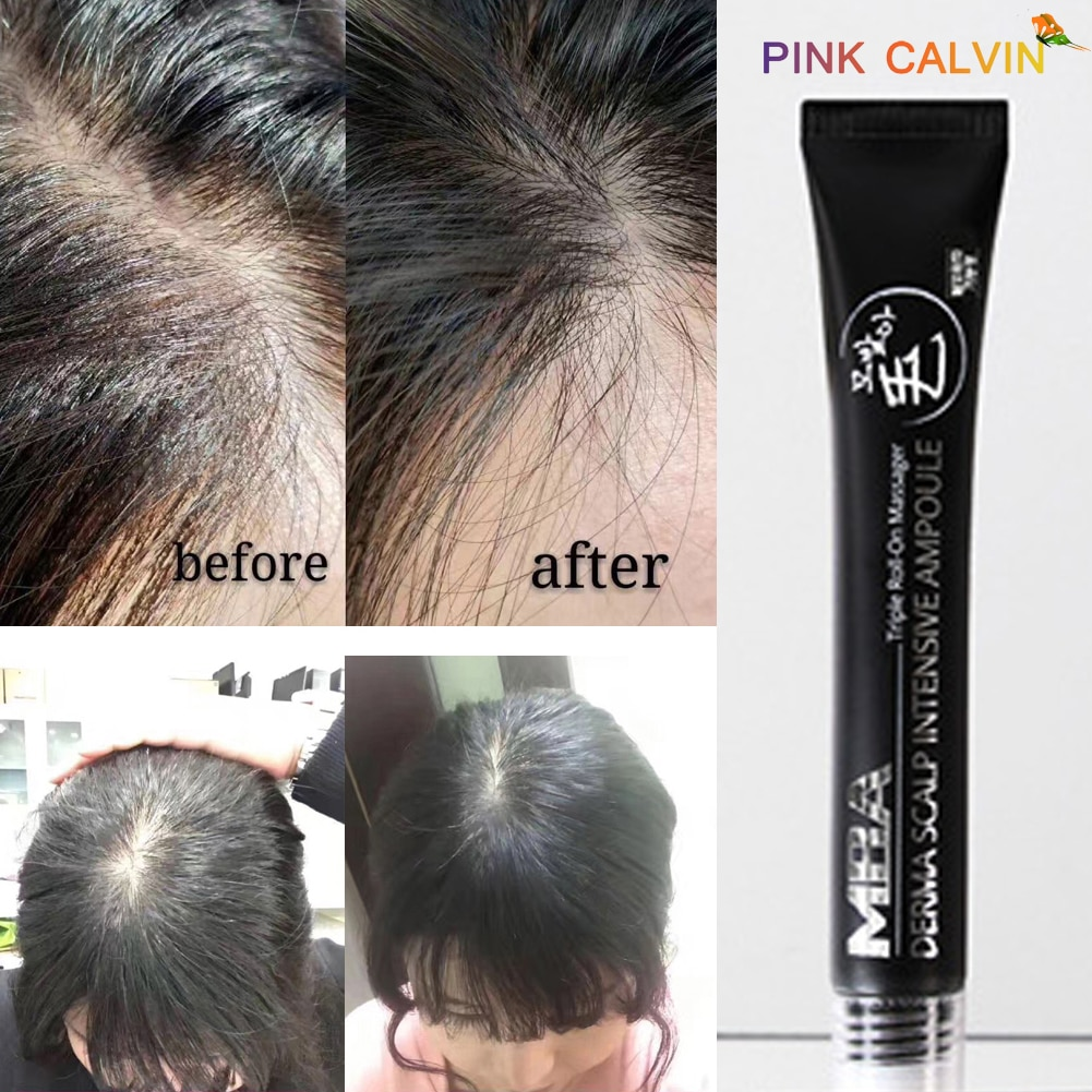 European and American anti hair loss growth spray essential oils for male dry hair repair hair loss products toppik Essence