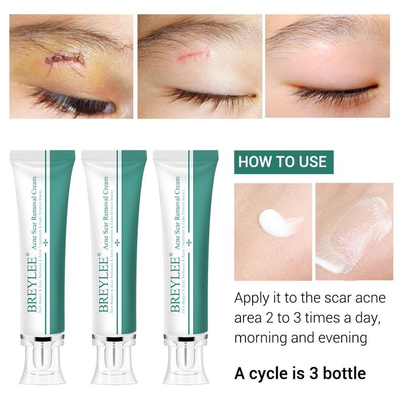 Scar removal cream Facial acne scars stretch marks removal acne scar treatment skin repair whitening moisturizing skin care недорого