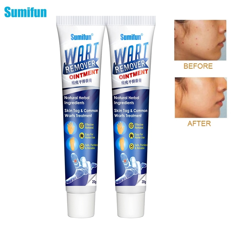 Sumifun 1/2pcs Warts Remover Ointment Skin Tag Remover Thorn Pain Relief Cream Antibacterial Wart Treatment Herbal Extract Patch