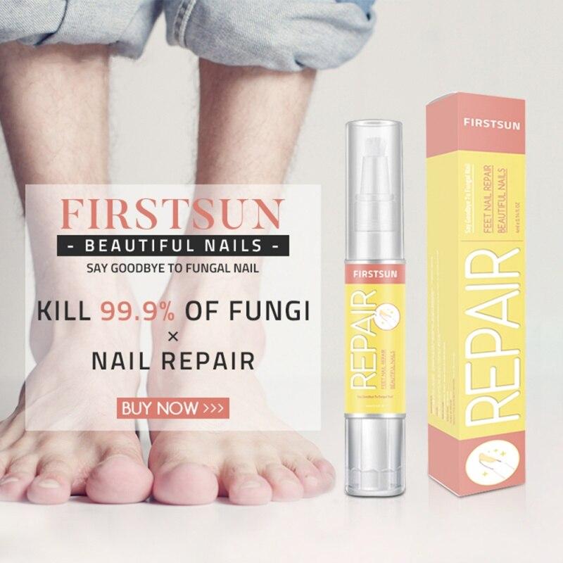 1 Uds. Lápiz de reparación de uñas elimina la onicomicosis nutritiva uñas hongos tratamiento producto tratamientos de uñas