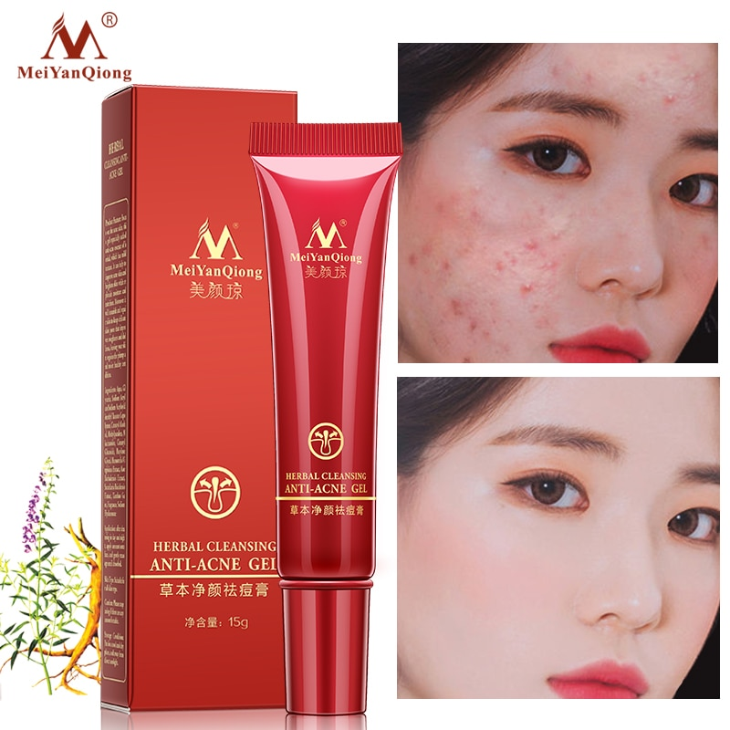 Anti-Acne-Cream Herbal Cleaning Acne Treatment Remove Whitening Face Care Acne Scar Remove Oil Control Skin Care gel недорого