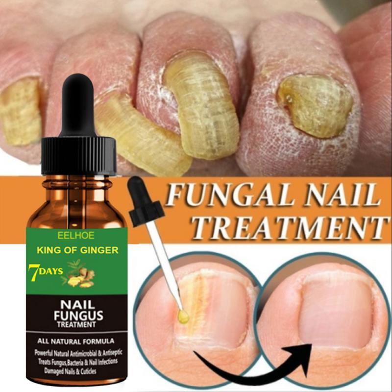 20/30/50ml Fungal Nail Repair Serum Care Treatment Foot Nail Fungus Removal Gel Anti Paronychia Onyc