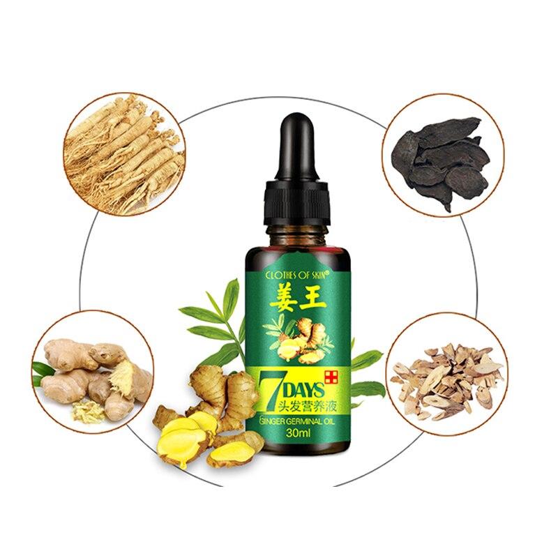 Aceite Esencial de jengibre 30ml, esencia para el crecimiento del cabello, esencia para la pérdida de cabello, esencia para el crecimiento del cabello, complejo para el cuidado del cabello denso con vitaminas para crecimiento rápido