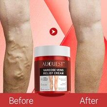 AUQUEST Varicose Veins Relief Cream Vasculitis Phlebitis Spider Pain Relief Ointment Medical Plaster