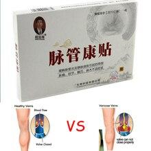2 sztuk wysokiej jakości żylaki Cure Patch Vasculitis ziołowe leczenie kwas zęzy swędzenie tynk Pacth bólu