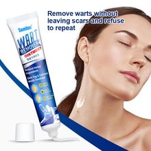 1/3pcs Instant Blemish Removal Gel Wart Removal Body Warts Treatment Cream Foot Care Cream Skin Tag