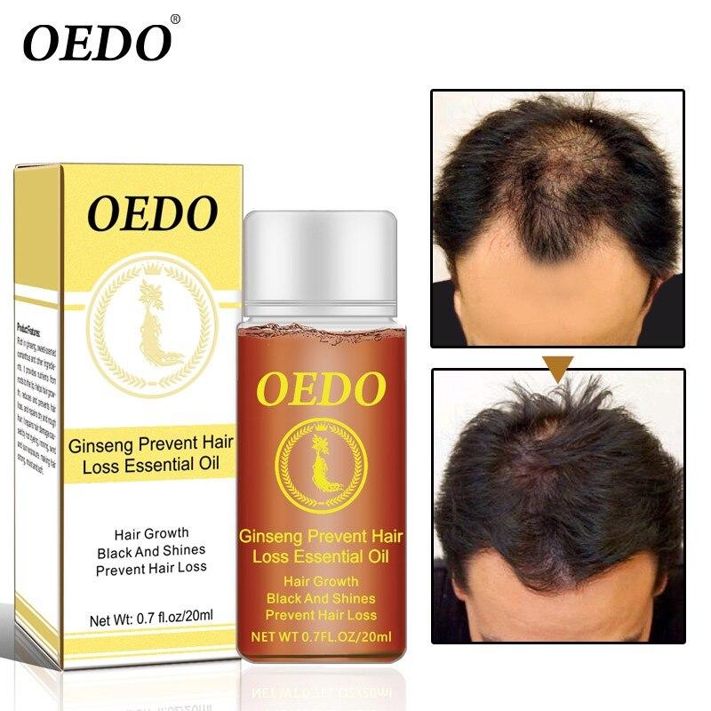 Hair Growth Products Ginseng Oil Hair Growth Faster Grow Hair Stop Hair Loss Treatment 20ml