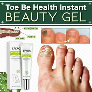 15ml Infection Beauty Nail Fungal Treatment Gel Health Instant Be Nail Fungal Infection Treatment Cr