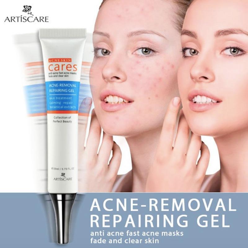 Árbol de té Crema de eliminación de cicatriz de acné Control de aceite acné reducción de poros Crema acné blanquear Crema Visage Cilt leke giderici