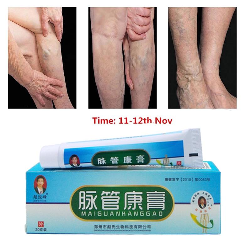 AliExpress - 1pcs Ifory Chinese Natural Herbal Medicine for Varicose Veins Ointment Vasculitis Inflammation Leg MassageVaricose Veins Cream